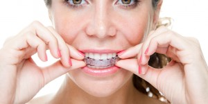 INVISALIGN Ortho Treatment