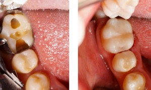Tooth-Colored Fillings (mercury-free)