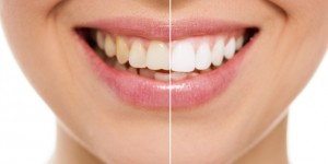 "Tooth Whitening with ""ZOOM"" (in-office)"