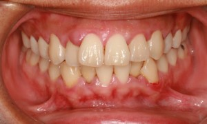 Non-Surgical Periodontal (Gum) Therapy